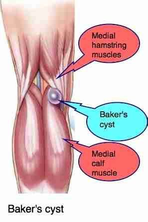 essential oil for baker's cyst picture 7