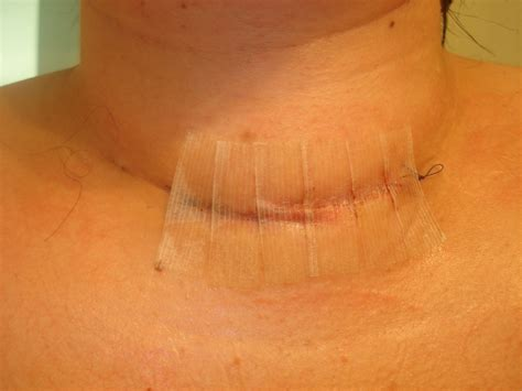 thyroid incision picture 5