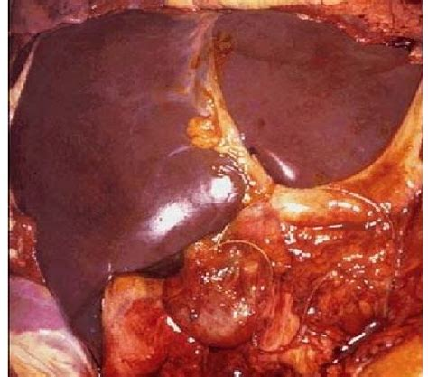 human healthy liver picture 9