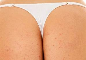 homeopathic acne remedies picture 7