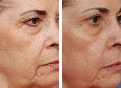 skin resurfacing picture 14