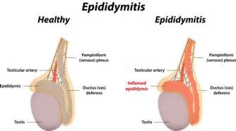 Causes of epidytimis in dogs picture 3