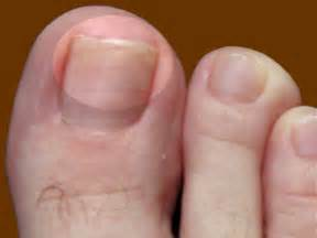 stages of nail fungus picture 6