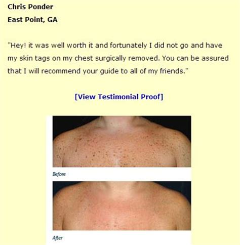 warts moles skin tag removal in ritm picture 5