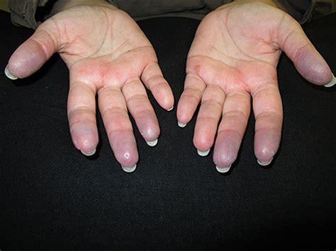 beta carotene for skin picture 3