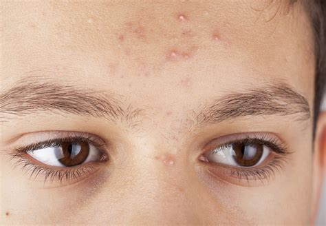 how fix skin after acne antibiotics picture 7