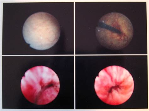 cystoscope bladder pictures picture 7