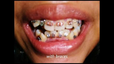 crowded teeth picture 1