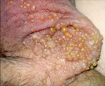 scrotal skin problems picture 13