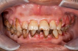 causes of teeth problems picture 18