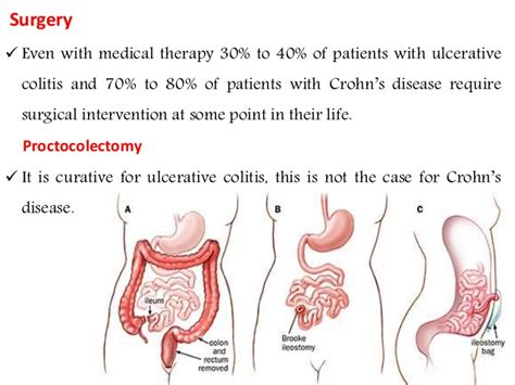 inflammatory bowel syndrome picture 11