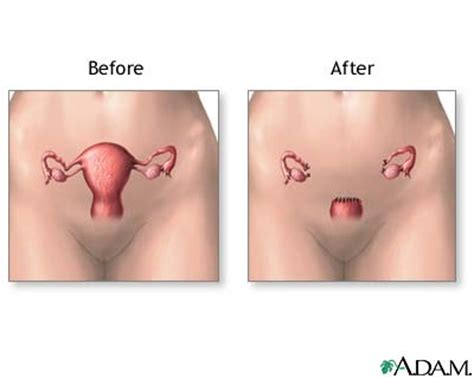 aging after full hysterectomy picture 13