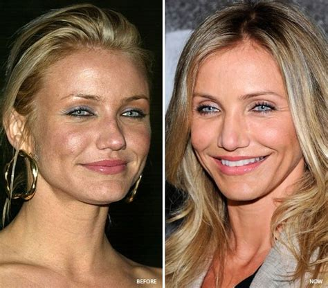 foundation best for aging skin tone picture 9
