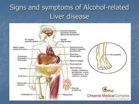 alcohol, liver problems, symptoms picture 11