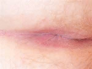 what can cause ps on the vaginal area picture 2
