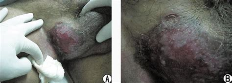 scrotal skin problems picture 3