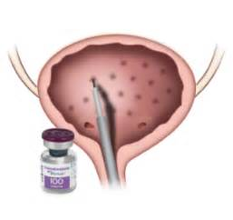 botox injection in bladder picture 10