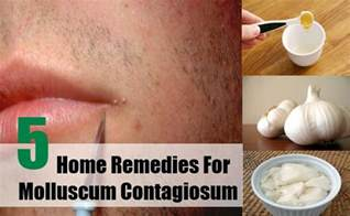 home remedies to treat molescus picture 1