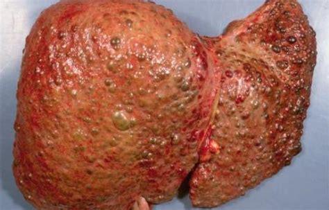 reversing liver damage picture 1