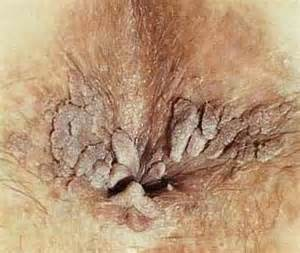 anal wart picture 11