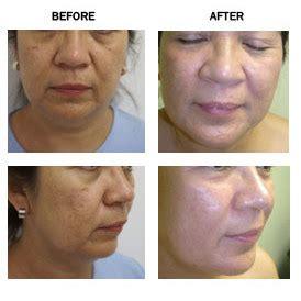 sculptra, acne scar picture 5