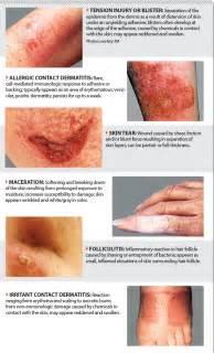 skin tear in the elderly picture 6