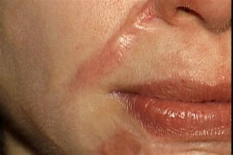 cost of co2 laser for acne scars picture 6