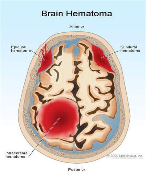 Aneurysm warning bleed low blood pressure picture 1