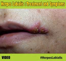 cure for herpes in mexico picture 17
