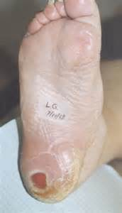 does heel ulcers heal on diabetics picture 3