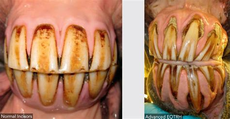 human growth hormone charcot marie tooth picture 4