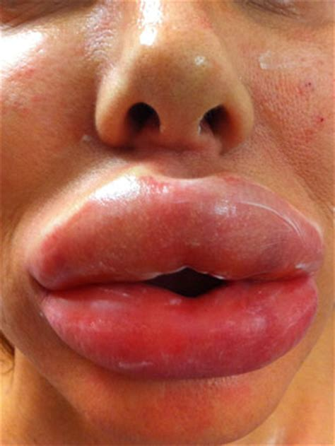 Cholosterol on lips picture 10