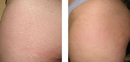 vicks for stretch marks before and after pics picture 7