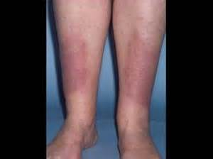 hyperthyroidism and shaking legs picture 1