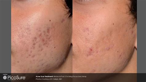 Acne scarring picture 19