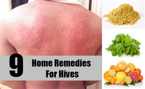 homeopathic remedies for hives picture 2