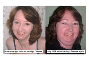 cortisol and weight gain picture 9