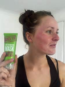 red skin marks on face picture 5