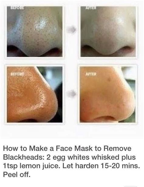 great stuff remove from skin picture 2
