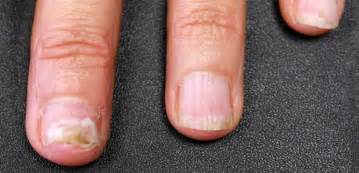 what to use for nail fungus picture 6