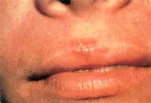 herpes exposure picture 2