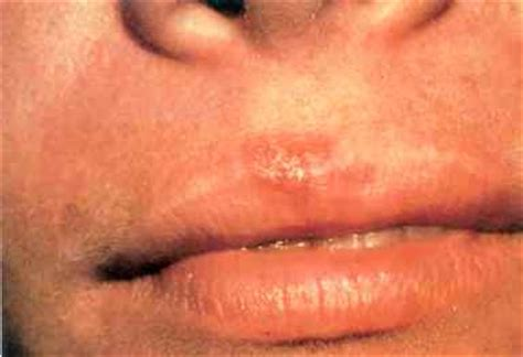 what causes reoccuring pimpes of the upper lip picture 1