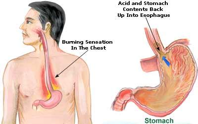 does indigestion cause pain around the chest area picture 12