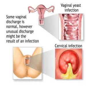 symptoms and causes of vaginal yeast infection picture 15