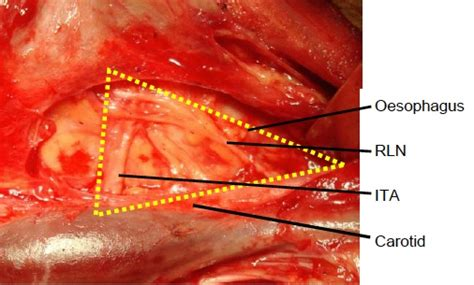 nodule with blood supply picture 5