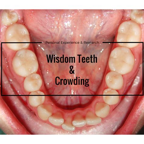 what teeth are your wisdom teeth picture 7