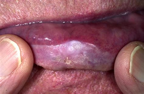 leukoplakia in the mouth lips picture 5