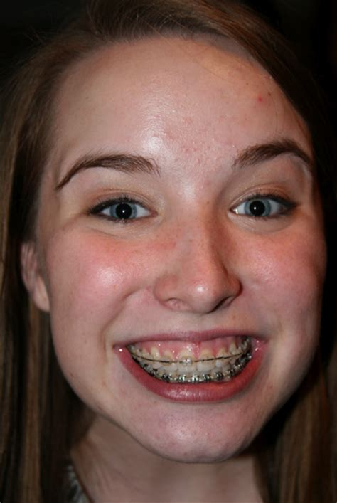 how braces on h are removed picture 6