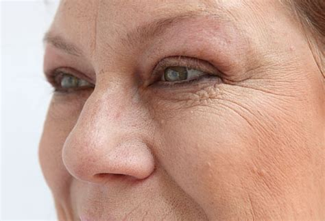 what secret are women using for no wrinkles picture 5