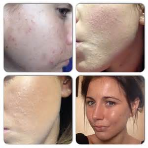 vitacure acne works review picture 17